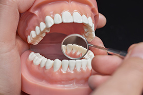 Dentist Educating Patients with Mouth Model